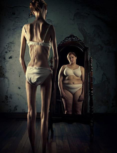 anorexia-mirror-picture-ross-brown1.jpg